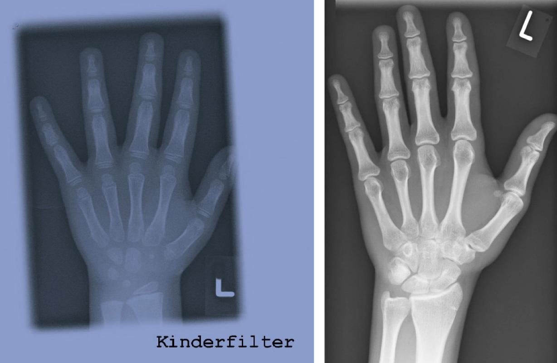 Strahlenbelastung Flug Berechnen : skelettalterbestimmung orthop die unfallchirurgie ~ Themetempest.com Abrechnung