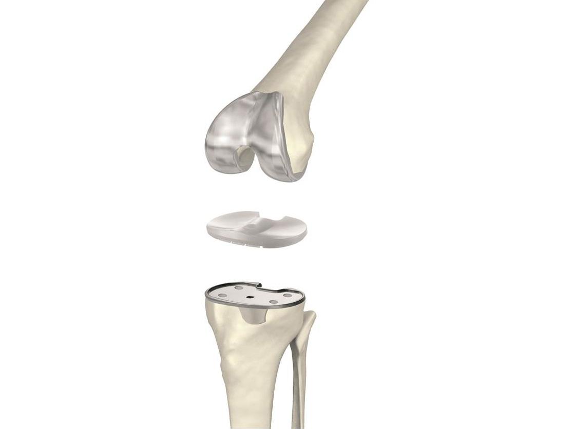 Kniegelenkersatz - Orthopädie Unfallchirurgie Würzburg Kitzingen